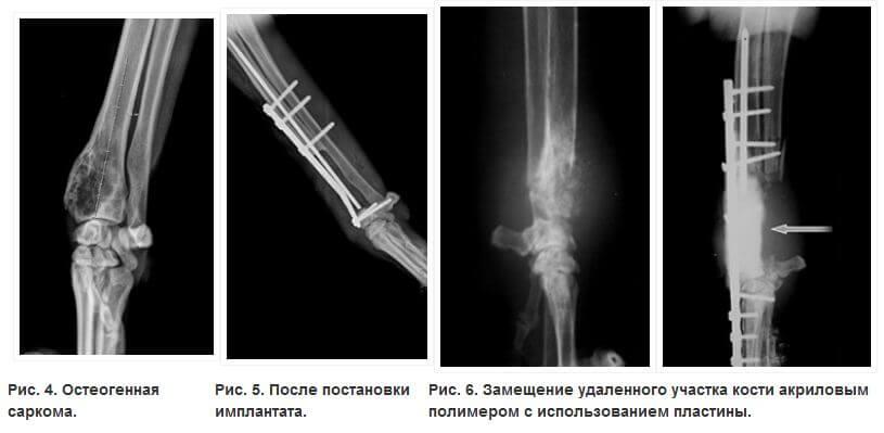 Протезированием лучевой кости у собаки после удаления саркомы.